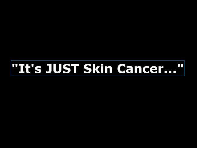 skin cancer2